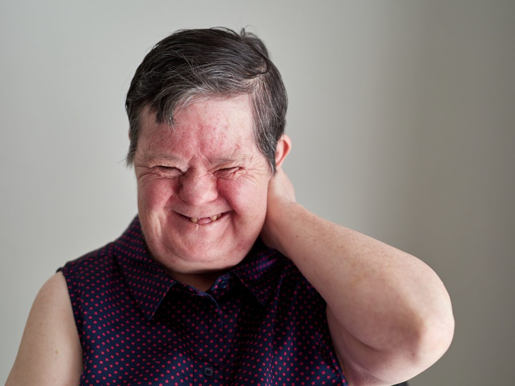 Photo of a woman with disability, laughing with her hand up behind her head.